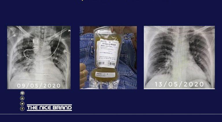 แพทย์ มอ.เจ๋ง ใช้พลาสมารักษาผู้ป่วยโควิด-19 สำเร็จ